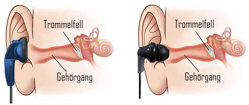 Ohrstöpsel In-Ear